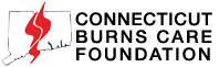 CT Burns Care Foundation